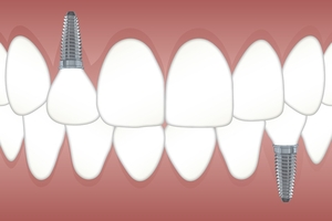 More about Dental Implants 31