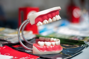 Information about Dental Implants 4